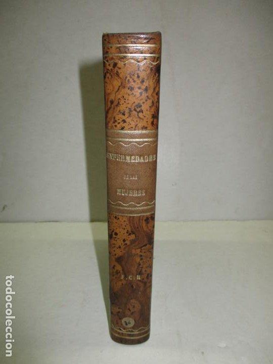 Libros antiguos: TRATAMIENTO HIGIÉNICO, MÉDICO Y QUIRÚRGICO DE LAS ENFERMEDADES DE LAS MUJERES... HALE, Edwin M. 1881 - Foto 2 - 123199714