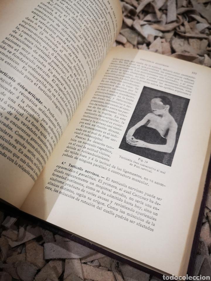 Libros antiguos: Tratado de cirugía infantil con 219 figuras en el texto año 1914. Piechaud - Foto 3 - 185740340