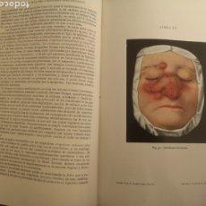 Libros antiguos: TRATADO DE ENFERMEDADES DE LA PIEL Y VENEREAS.- DR. EDMUNDO BESSER, 1916, NUMEROSAS ILUSTRACIONES. Lote 190606641