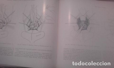 Libros antiguos: Atlas De Operaciones Ginecologicas O.Kaser - F.A.Ikle - Foto 3 - 194126026