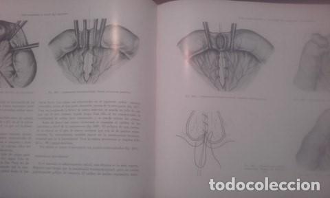 Libros antiguos: Atlas De Operaciones Ginecologicas O.Kaser - F.A.Ikle - Foto 4 - 194126026