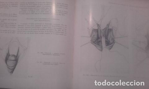 Libros antiguos: Atlas De Operaciones Ginecologicas O.Kaser - F.A.Ikle - Foto 5 - 194126026