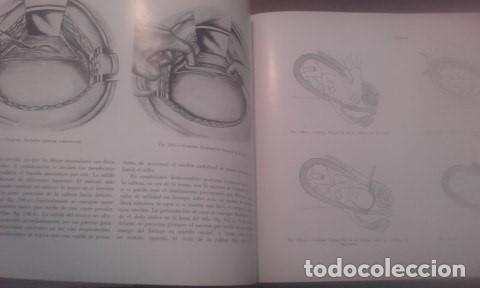 Libros antiguos: Atlas De Operaciones Ginecologicas O.Kaser - F.A.Ikle - Foto 6 - 194126026