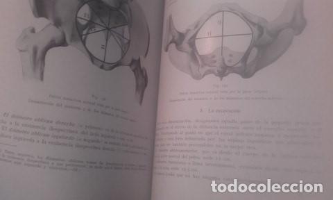 Libros antiguos: TRATADO COMPLETO DE OBSTETRICIA Dr. Ernesto Bumm. - Foto 3 - 194162431