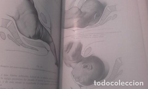 Libros antiguos: TRATADO COMPLETO DE OBSTETRICIA Dr. Ernesto Bumm. - Foto 4 - 194162431
