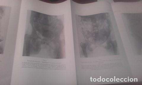 Libros antiguos: TRATADO COMPLETO DE OBSTETRICIA Dr. Ernesto Bumm. - Foto 5 - 194162431