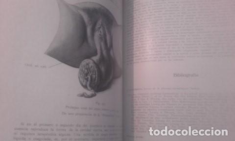 Libros antiguos: TRATADO COMPLETO DE OBSTETRICIA Dr. Ernesto Bumm. - Foto 6 - 194162431
