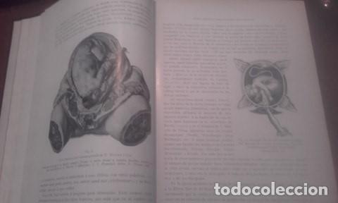 Libros antiguos: TRATADO COMPLETO DE OBSTETRICIA Dr. Ernesto Bumm. - Foto 7 - 194162431