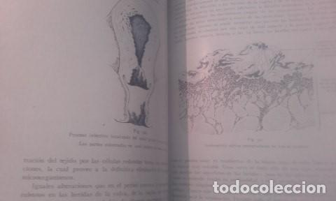 Libros antiguos: TRATADO COMPLETO DE OBSTETRICIA Dr. Ernesto Bumm. - Foto 8 - 194162431
