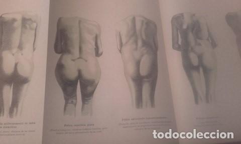 Libros antiguos: TRATADO COMPLETO DE OBSTETRICIA Dr. Ernesto Bumm. - Foto 9 - 194162431