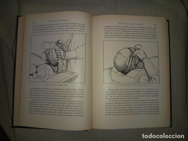 Libros antiguos: MANUAL ATLAS DE TECNICA DE LAS AUTOPSIAS - AÑO 1929 - E.FRANCO - MUY ILUSTRADO. - Foto 6 - 194757387