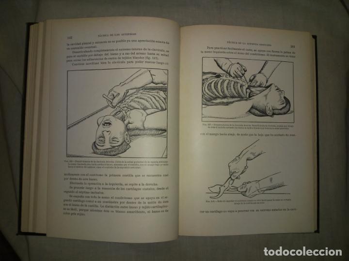 Libros antiguos: MANUAL ATLAS DE TECNICA DE LAS AUTOPSIAS - AÑO 1929 - E.FRANCO - MUY ILUSTRADO. - Foto 7 - 194757387