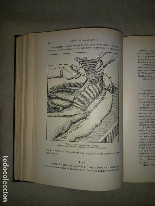 Libros antiguos: MANUAL ATLAS DE TECNICA DE LAS AUTOPSIAS - AÑO 1929 - E.FRANCO - MUY ILUSTRADO. - Foto 8 - 194757387