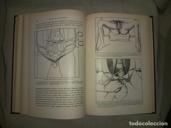 Libros antiguos: MANUAL ATLAS DE TECNICA DE LAS AUTOPSIAS - AÑO 1929 - E.FRANCO - MUY ILUSTRADO. - Foto 9 - 194757387