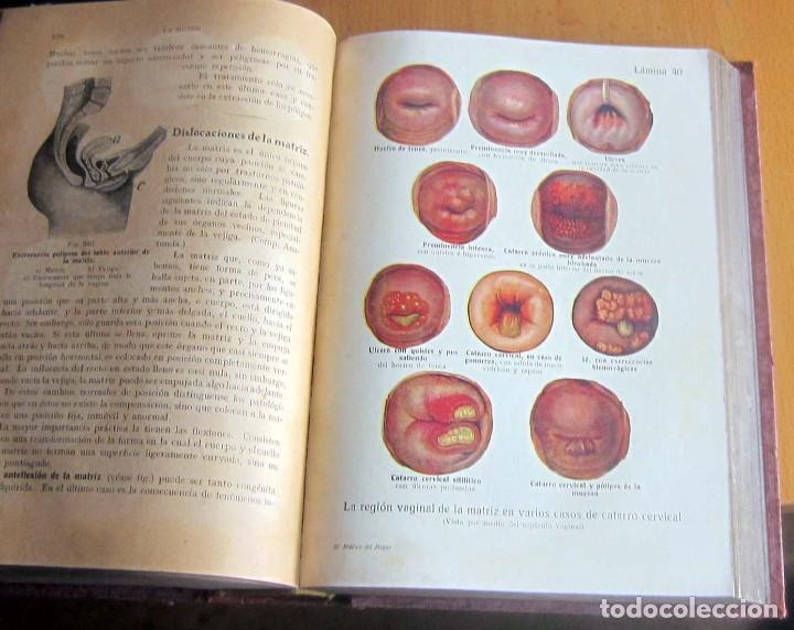 Libros antiguos: EL MEDICO DEL HOGAR,JENNY SPRINGER, DOCTORA EN MEDICINA,AÑO 1923, - Foto 15 - 196491720
