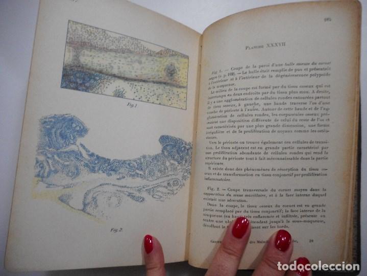 Libros antiguos: Atlas-Manuel des maladiesde la bouche et des fosses nasales (francés) Y99175T - Foto 4 - 196518446