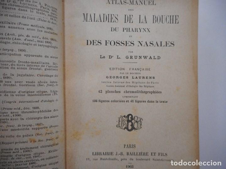 Libros antiguos: Atlas-Manuel des maladiesde la bouche et des fosses nasales (francés) Y99175T - Foto 5 - 196518446