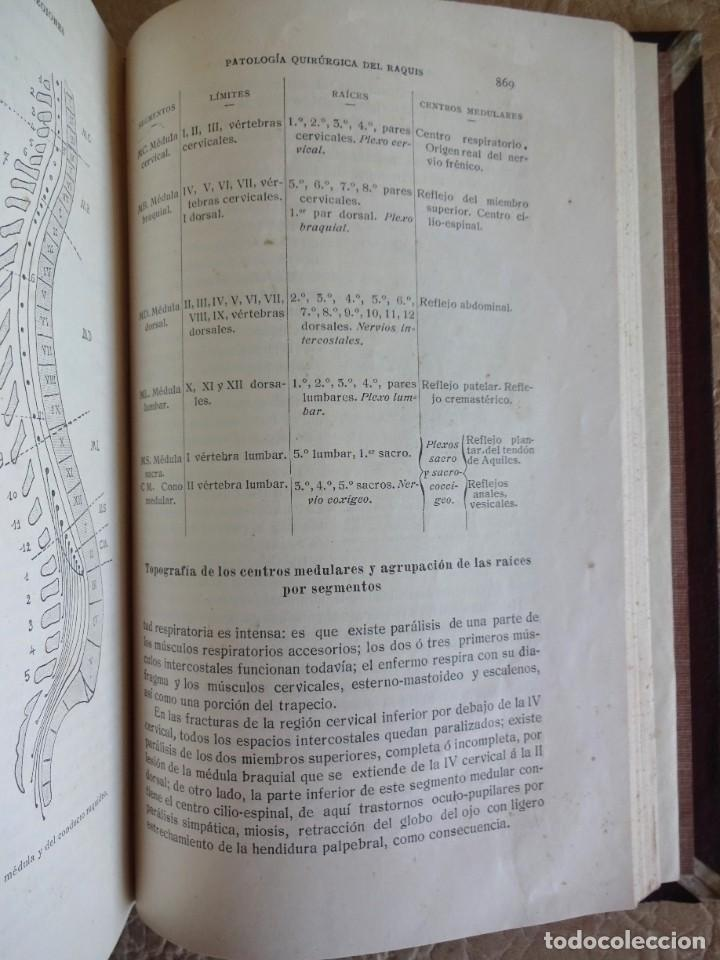 Libros antiguos: TRATADO DE PATOLOGÍA QUIRURGICA 4 TOMOS P. LECENE L. TIXIR R. PROUST AÑO 1912 BEGOUIN - Foto 9 - 132893442
