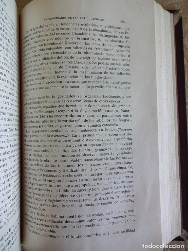 Libros antiguos: TRATADO DE PATOLOGÍA QUIRURGICA 4 TOMOS P. LECENE L. TIXIR R. PROUST AÑO 1912 BEGOUIN - Foto 10 - 132893442
