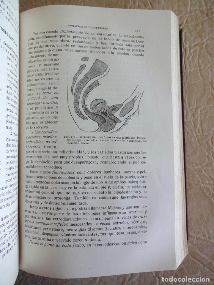 Libros antiguos: TRATADO DE PATOLOGÍA QUIRURGICA 4 TOMOS P. LECENE L. TIXIR R. PROUST AÑO 1912 BEGOUIN - Foto 12 - 132893442
