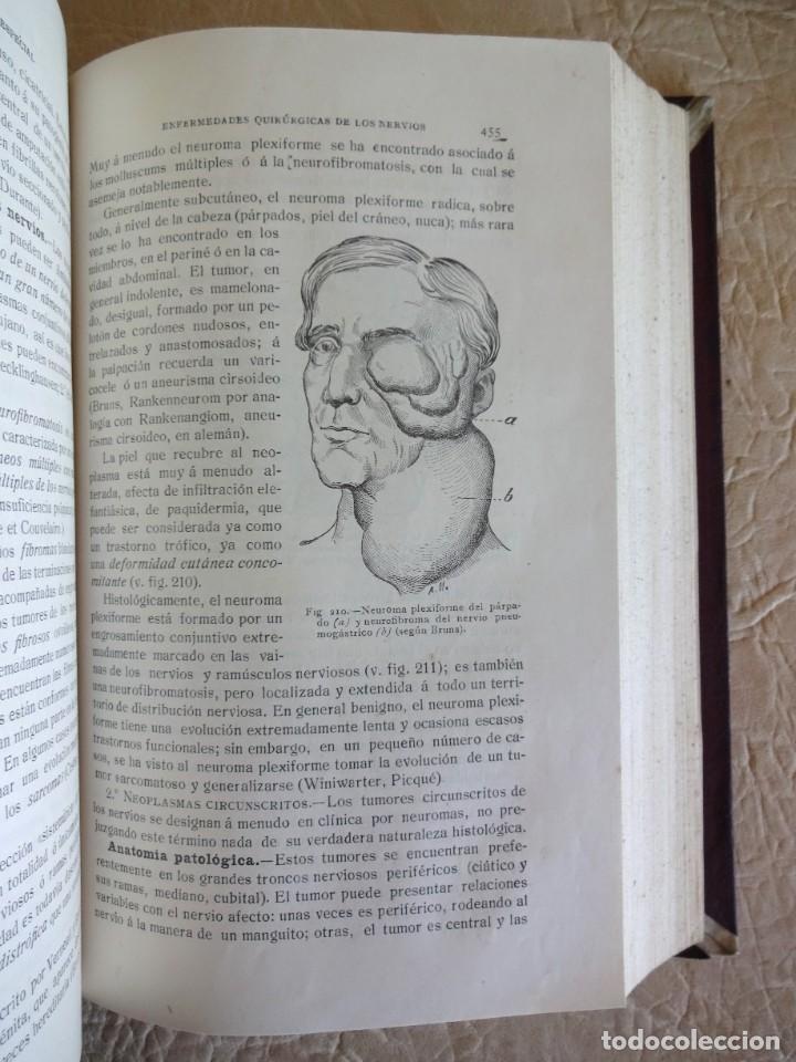 Libros antiguos: TRATADO DE PATOLOGÍA QUIRURGICA 4 TOMOS P. LECENE L. TIXIR R. PROUST AÑO 1912 BEGOUIN - Foto 13 - 132893442