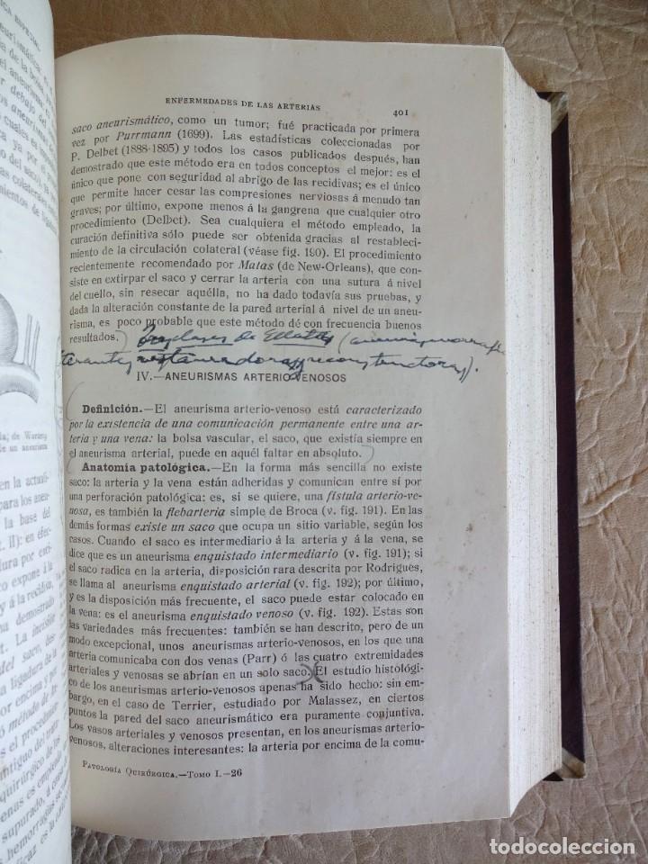 Libros antiguos: TRATADO DE PATOLOGÍA QUIRURGICA 4 TOMOS P. LECENE L. TIXIR R. PROUST AÑO 1912 BEGOUIN - Foto 14 - 132893442