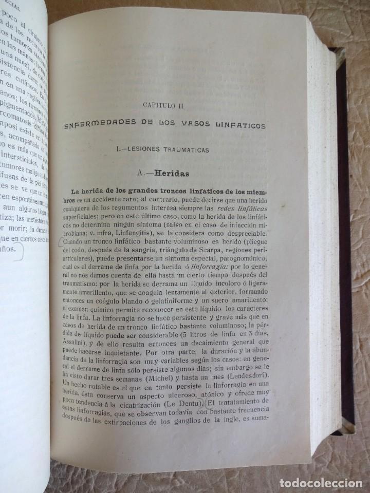Libros antiguos: TRATADO DE PATOLOGÍA QUIRURGICA 4 TOMOS P. LECENE L. TIXIR R. PROUST AÑO 1912 BEGOUIN - Foto 15 - 132893442