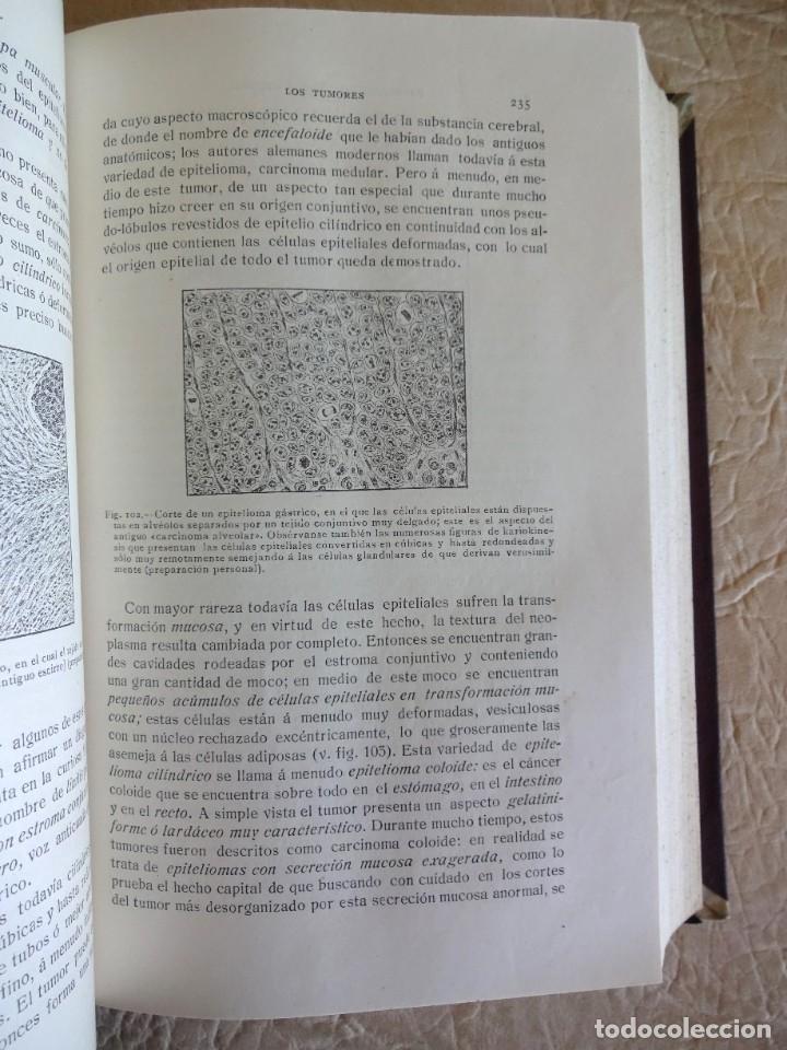 Libros antiguos: TRATADO DE PATOLOGÍA QUIRURGICA 4 TOMOS P. LECENE L. TIXIR R. PROUST AÑO 1912 BEGOUIN - Foto 16 - 132893442
