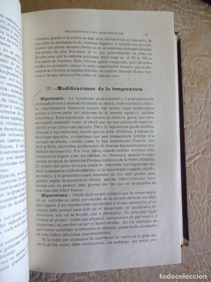 Libros antiguos: TRATADO DE PATOLOGÍA QUIRURGICA 4 TOMOS P. LECENE L. TIXIR R. PROUST AÑO 1912 BEGOUIN - Foto 18 - 132893442