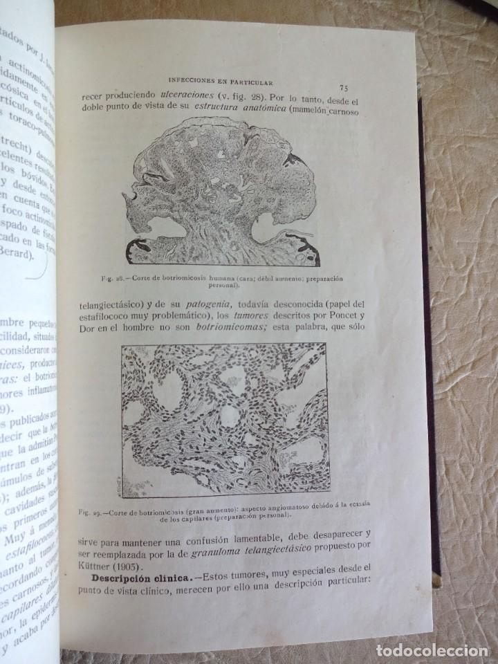 Libros antiguos: TRATADO DE PATOLOGÍA QUIRURGICA 4 TOMOS P. LECENE L. TIXIR R. PROUST AÑO 1912 BEGOUIN - Foto 19 - 132893442