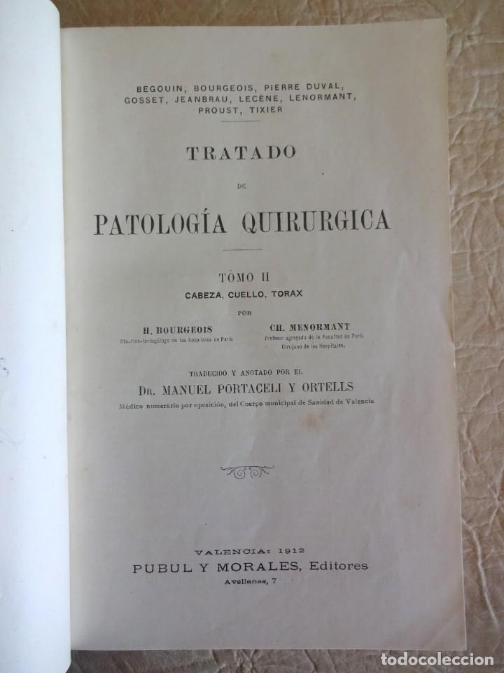 Libros antiguos: TRATADO DE PATOLOGÍA QUIRURGICA 4 TOMOS P. LECENE L. TIXIR R. PROUST AÑO 1912 BEGOUIN - Foto 20 - 132893442