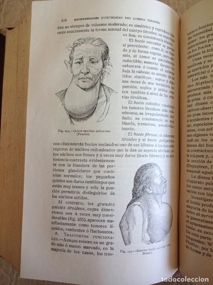 Libros antiguos: TRATADO DE PATOLOGÍA QUIRURGICA 4 TOMOS P. LECENE L. TIXIR R. PROUST AÑO 1912 BEGOUIN - Foto 22 - 132893442