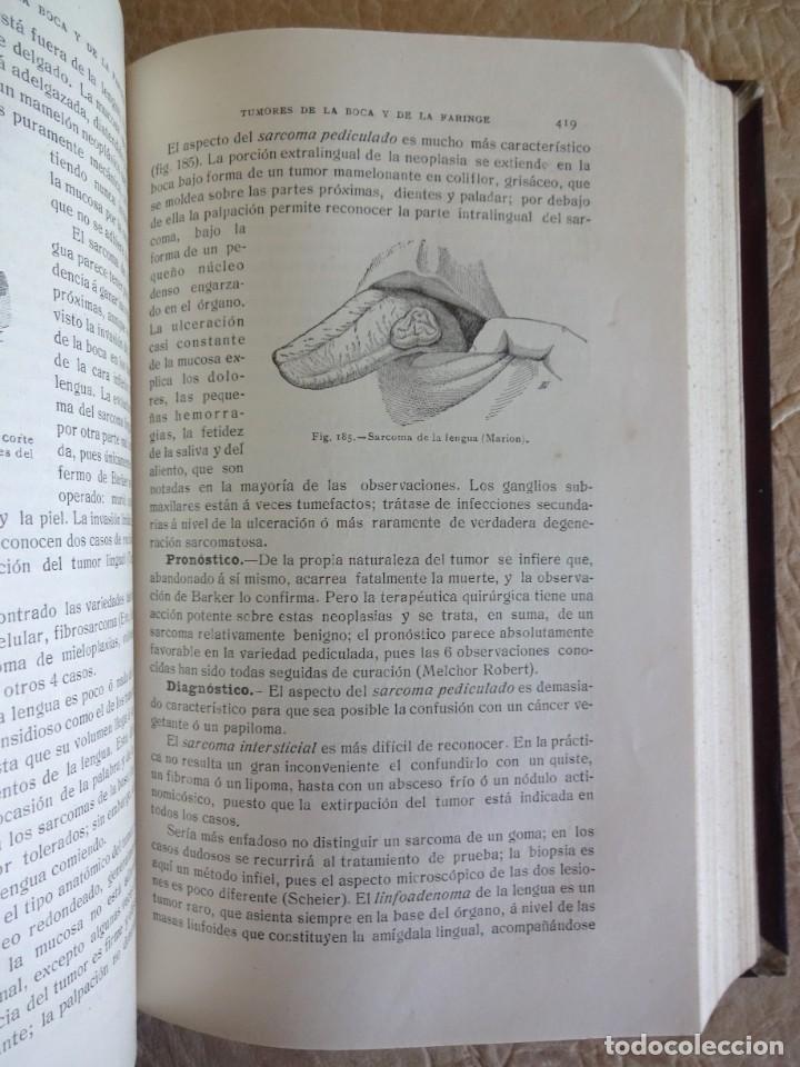 Libros antiguos: TRATADO DE PATOLOGÍA QUIRURGICA 4 TOMOS P. LECENE L. TIXIR R. PROUST AÑO 1912 BEGOUIN - Foto 23 - 132893442