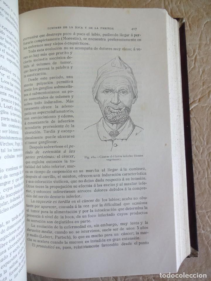 Libros antiguos: TRATADO DE PATOLOGÍA QUIRURGICA 4 TOMOS P. LECENE L. TIXIR R. PROUST AÑO 1912 BEGOUIN - Foto 24 - 132893442