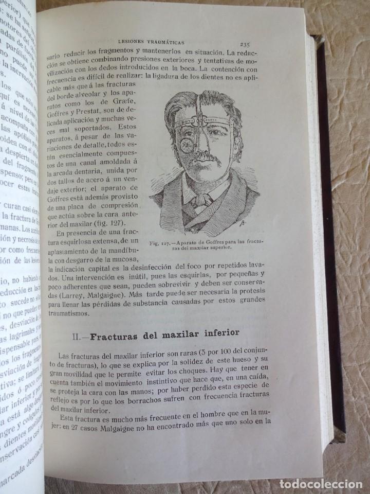 Libros antiguos: TRATADO DE PATOLOGÍA QUIRURGICA 4 TOMOS P. LECENE L. TIXIR R. PROUST AÑO 1912 BEGOUIN - Foto 25 - 132893442