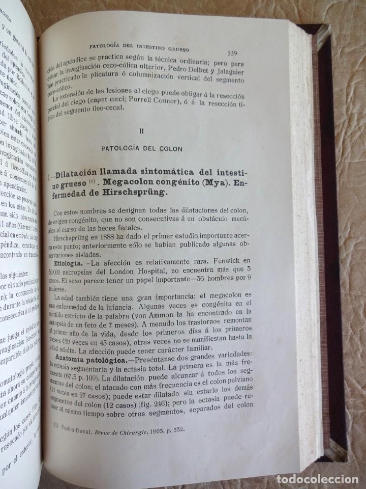 Libros antiguos: TRATADO DE PATOLOGÍA QUIRURGICA 4 TOMOS P. LECENE L. TIXIR R. PROUST AÑO 1912 BEGOUIN - Foto 30 - 132893442
