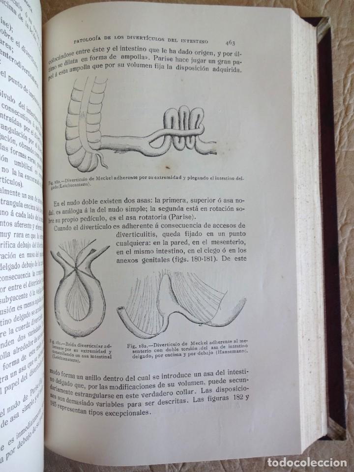 Libros antiguos: TRATADO DE PATOLOGÍA QUIRURGICA 4 TOMOS P. LECENE L. TIXIR R. PROUST AÑO 1912 BEGOUIN - Foto 31 - 132893442