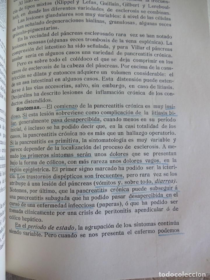 Libros antiguos: TRATADO DE PATOLOGÍA QUIRURGICA 4 TOMOS P. LECENE L. TIXIR R. PROUST AÑO 1912 BEGOUIN - Foto 33 - 132893442