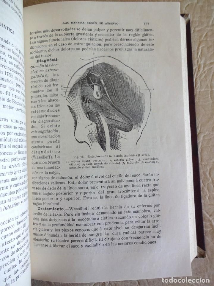 Libros antiguos: TRATADO DE PATOLOGÍA QUIRURGICA 4 TOMOS P. LECENE L. TIXIR R. PROUST AÑO 1912 BEGOUIN - Foto 35 - 132893442
