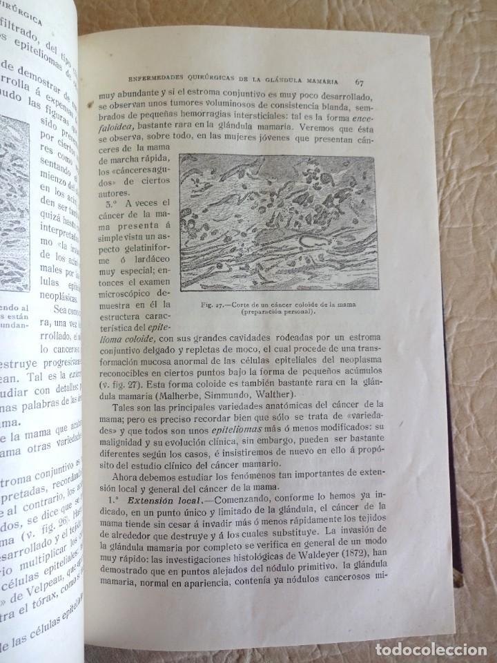 Libros antiguos: TRATADO DE PATOLOGÍA QUIRURGICA 4 TOMOS P. LECENE L. TIXIR R. PROUST AÑO 1912 BEGOUIN - Foto 36 - 132893442