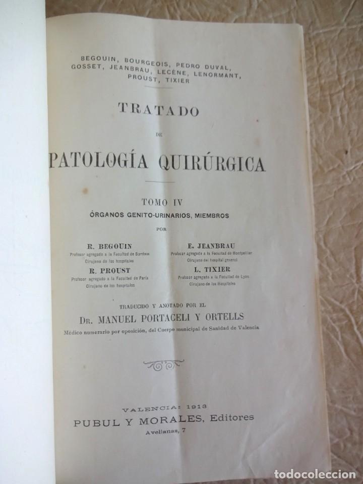 Libros antiguos: TRATADO DE PATOLOGÍA QUIRURGICA 4 TOMOS P. LECENE L. TIXIR R. PROUST AÑO 1912 BEGOUIN - Foto 37 - 132893442