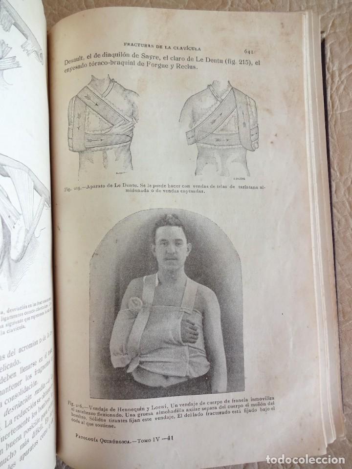 Libros antiguos: TRATADO DE PATOLOGÍA QUIRURGICA 4 TOMOS P. LECENE L. TIXIR R. PROUST AÑO 1912 BEGOUIN - Foto 38 - 132893442