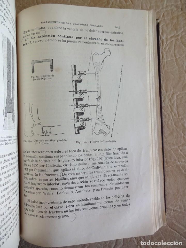 Libros antiguos: TRATADO DE PATOLOGÍA QUIRURGICA 4 TOMOS P. LECENE L. TIXIR R. PROUST AÑO 1912 BEGOUIN - Foto 39 - 132893442