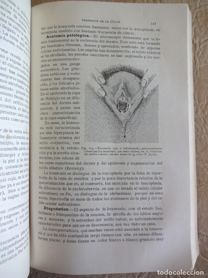 Libros antiguos: TRATADO DE PATOLOGÍA QUIRURGICA 4 TOMOS P. LECENE L. TIXIR R. PROUST AÑO 1912 BEGOUIN - Foto 40 - 132893442