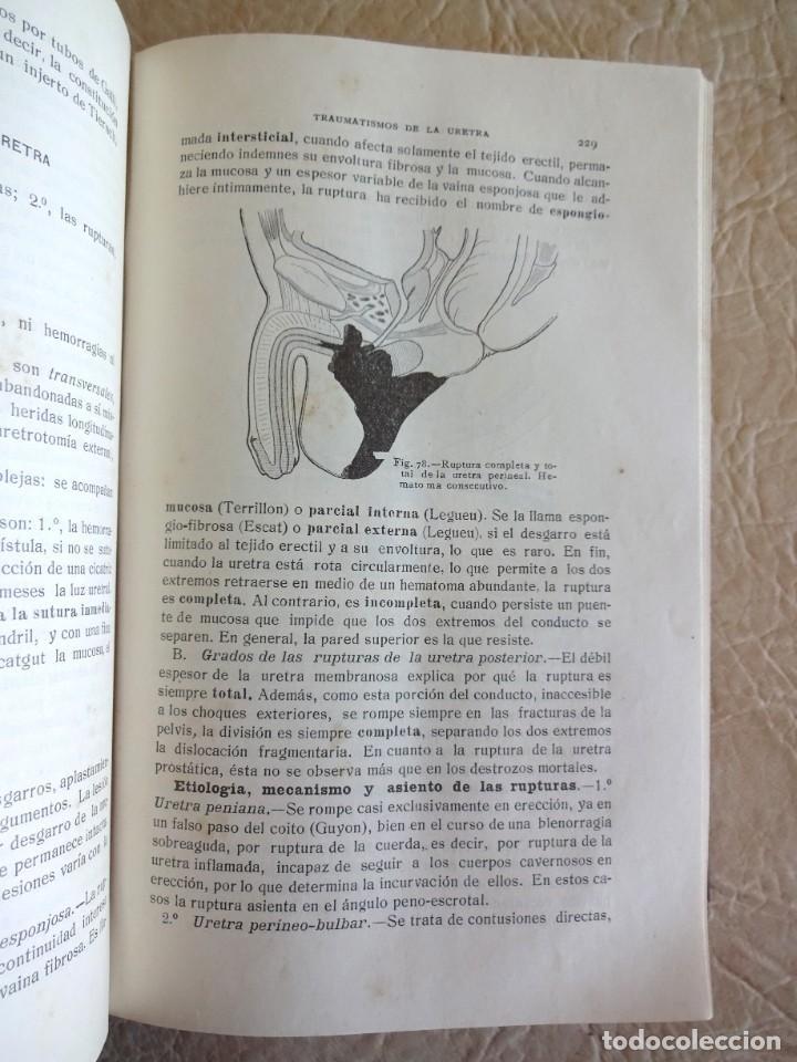 Libros antiguos: TRATADO DE PATOLOGÍA QUIRURGICA 4 TOMOS P. LECENE L. TIXIR R. PROUST AÑO 1912 BEGOUIN - Foto 41 - 132893442