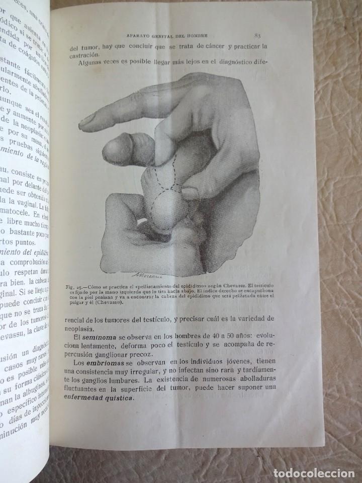 Libros antiguos: TRATADO DE PATOLOGÍA QUIRURGICA 4 TOMOS P. LECENE L. TIXIR R. PROUST AÑO 1912 BEGOUIN - Foto 42 - 132893442