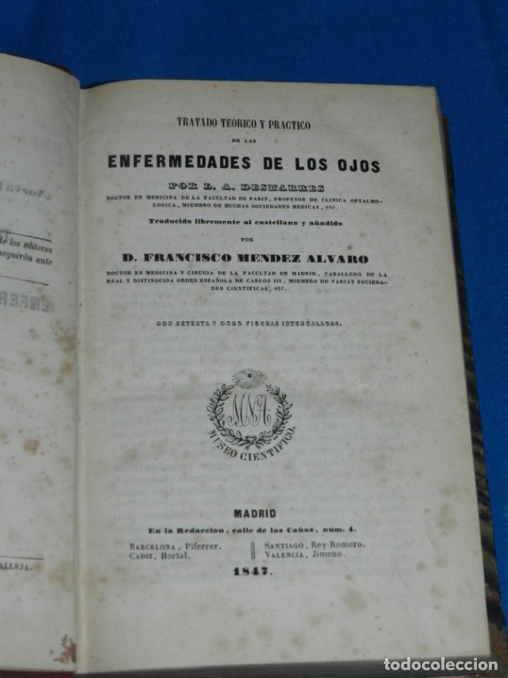 (MF) FRANCISCO MENDEZ ALVARO - TRATADO DE LAS ENFERMEDADES DE LOS OJOS, MADRID 1847 (Libros Antiguos, Raros y Curiosos - Ciencias, Manuales y Oficios - Medicina, Farmacia y Salud)