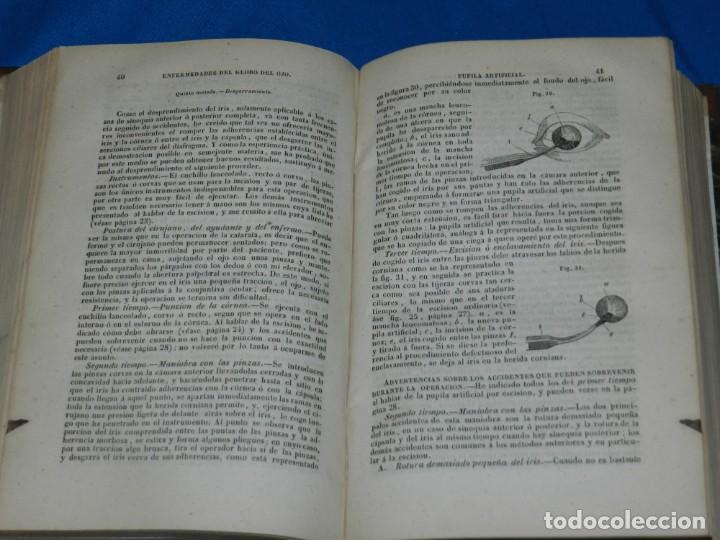Libros antiguos: (MF) FRANCISCO MENDEZ ALVARO - TRATADO DE LAS ENFERMEDADES DE LOS OJOS, MADRID 1847 - Foto 2 - 201487642