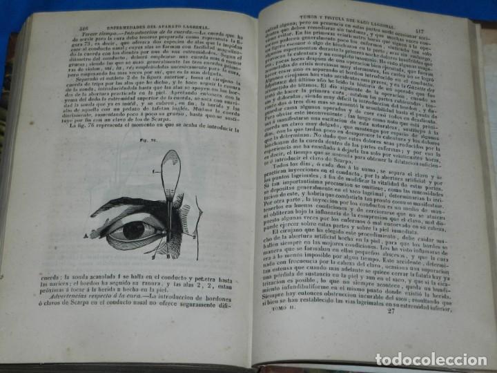 Libros antiguos: (MF) FRANCISCO MENDEZ ALVARO - TRATADO DE LAS ENFERMEDADES DE LOS OJOS, MADRID 1847 - Foto 4 - 201487642