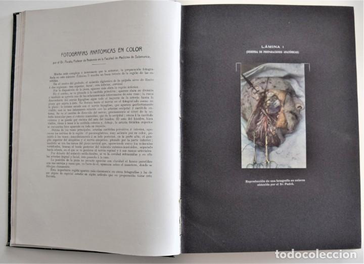 Libros antiguos: LOS PROGRESOS DE LA CLÍNICA DOS TOMOS AÑO COMPLETO DE 1914 - Foto 6 - 202394430